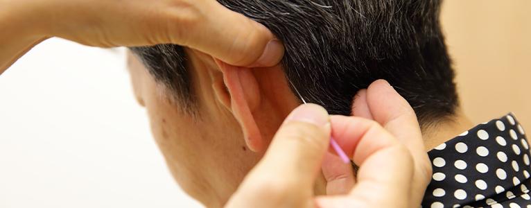YNSA(山元式新頭針療法)